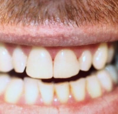 Close up of teeth in male mouth