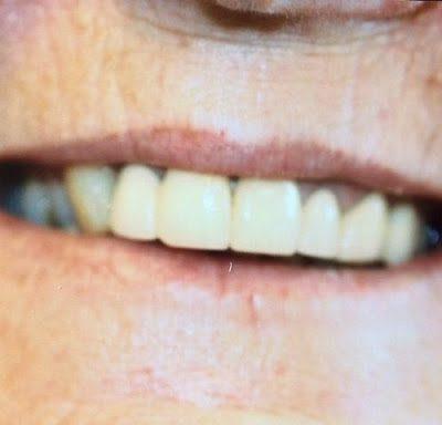 Close up of healthy looking upper teeth