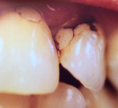 Close up of bleeding teeth