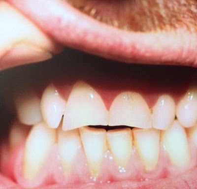 Close up of teeth in male mouth with upper lip held up