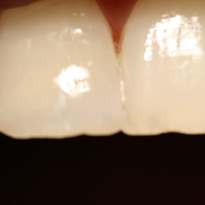 Close up of front teeth
